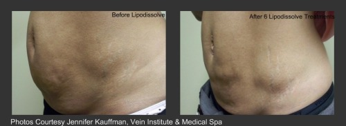 Beauty page 4 lipodissolve collage web solutioingenieria Image collections