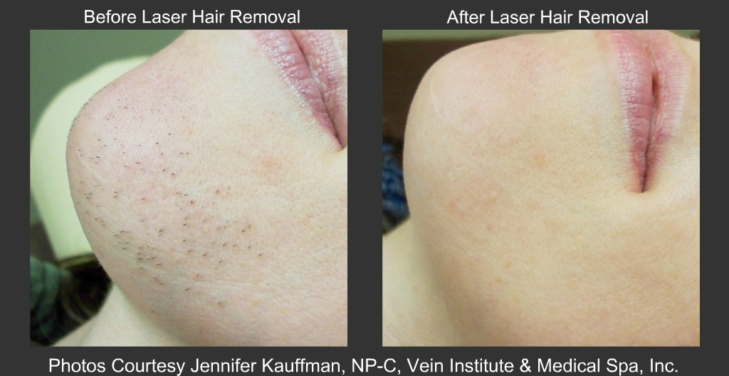 Male Pubic Hair Laser Removal Techniques For Chest Hair