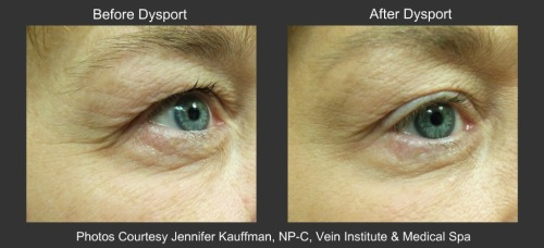 Dysport Eye Lift