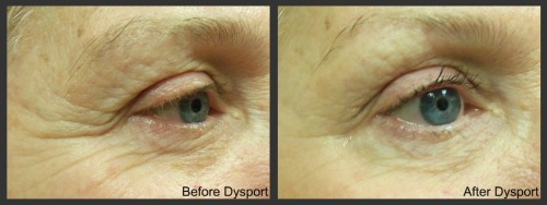 Dysport, right eye