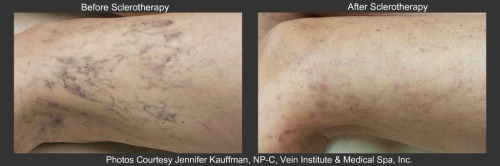 Sclerotherapy collage VIMS